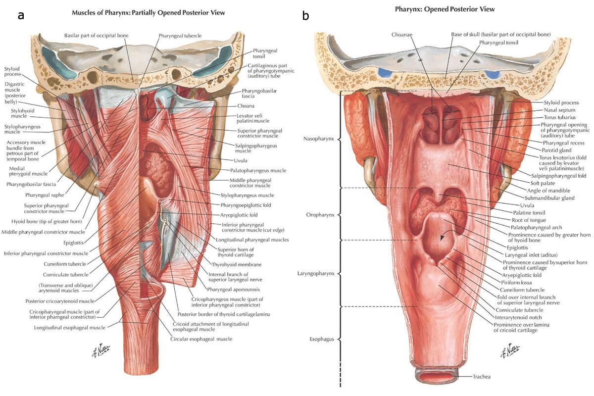 Pathology Outlines Cricopharyngeal Dysphagia